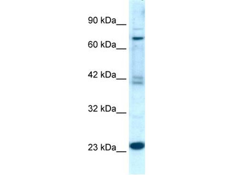 Western Blotting (WB) image for anti-Regulator of G-Protein Signaling 10 (RGS10) (Middle Region) antibody (ABIN2792213)