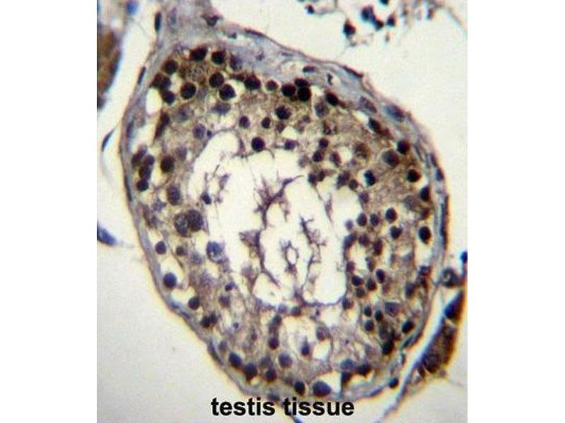Image no. 1 for anti-Deleted In Azoospermia 4 (DAZ4) antibody (ABIN2996817)