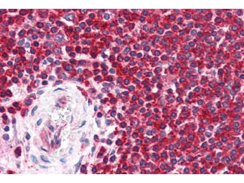 Immunohistochemistry (Paraffin-embedded Sections) (IHC (p)) image for anti-Mitogen-Activated Protein Kinase 8 (MAPK8) (N-Term) antibody (ABIN462091)