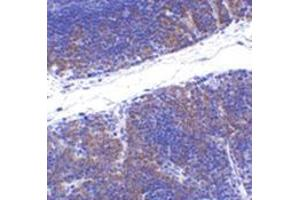 Immunohistochemistry (Paraffin-embedded Sections) (IHC (p)) image for anti-Tumor Necrosis Factor Receptor Superfamily, Member 14 (TNFRSF14) (N-Term) antibody (ABIN501000)