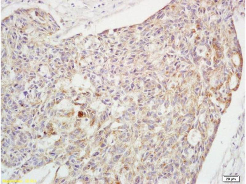 Immunohistochemistry (IHC) image for anti-CrkL antibody (V-Crk Sarcoma Virus CT10 Oncogene Homolog (Avian)-Like) (AA 230-270) (ABIN703420)