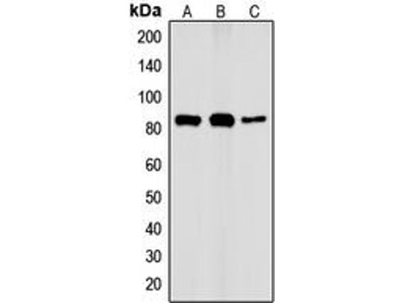 Western Blotting (WB) image for anti-conserved Helix-Loop-Helix Ubiquitous Kinase (CHUK) (N-Term), (pSer23) antibody (ABIN2707589)