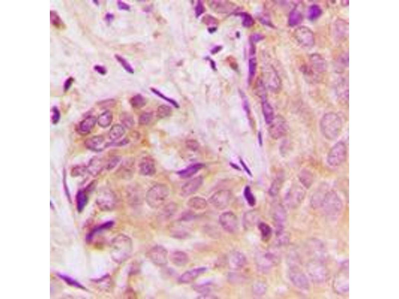 Immunohistochemistry (IHC) image for anti-TGFB1 antibody (Transforming Growth Factor, beta 1) (C-Term) (ABIN2705288)