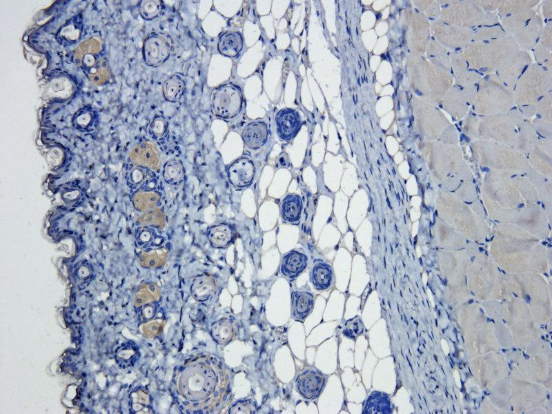 Immunohistochemistry (Paraffin-embedded Sections) (IHC (p)) image for anti-VEGF antibody (Vascular Endothelial Growth Factor A) (ABIN2506673)