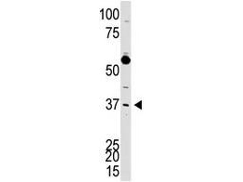 image for anti-DKK3 (N-Term) antibody (ABIN357071)