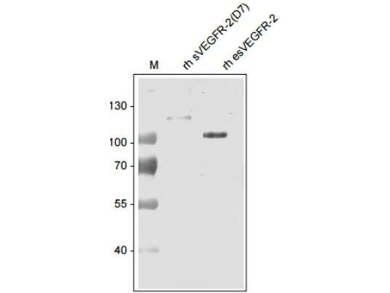 Western Blotting (WB) image for anti-VEGFR2 antibody (Kinase insert Domain Receptor (A Type III Receptor tyrosine Kinase))  (Biotin) (ABIN251446)