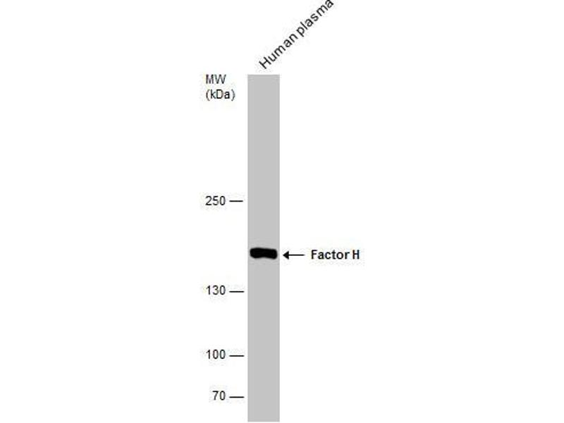 Western Blotting (WB) image for anti-Complement Factor H (CFH) (Internal Region) antibody (ABIN2854706)