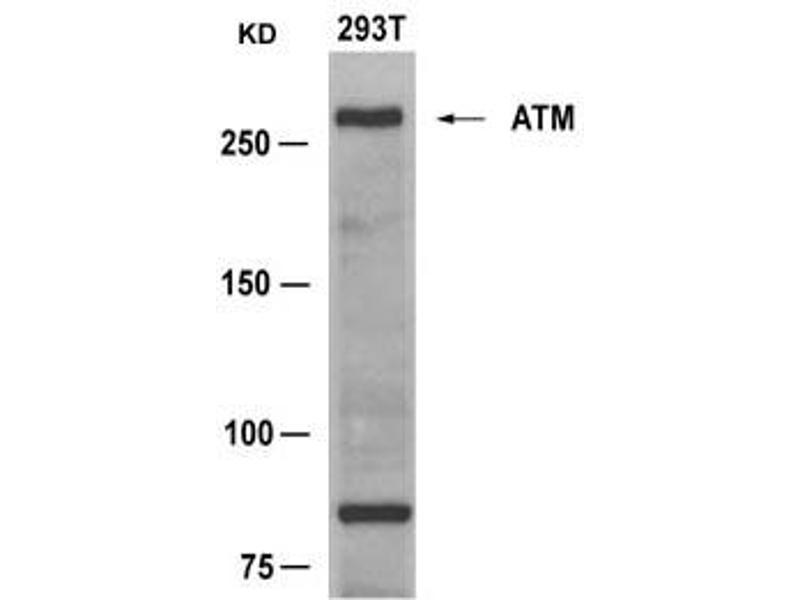 Image no. 1 for anti-Ataxia Telangiectasia Mutated (ATM) (AA 1979-1983) antibody (ABIN6267798)