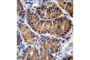 Immunohistochemistry (Paraffin-embedded Sections) (IHC (p)) image for anti-Interleukin 17B (IL17B) (AA 46-74), (Middle Region) antibody (ABIN952922)