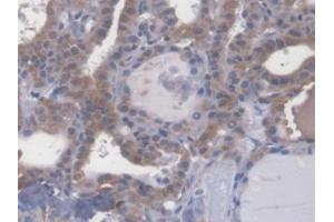 Image no. 2 for anti-Chromosome 2 Open Reading Frame 40 (C2orf40) (AA 32-148) antibody (ABIN1867688)