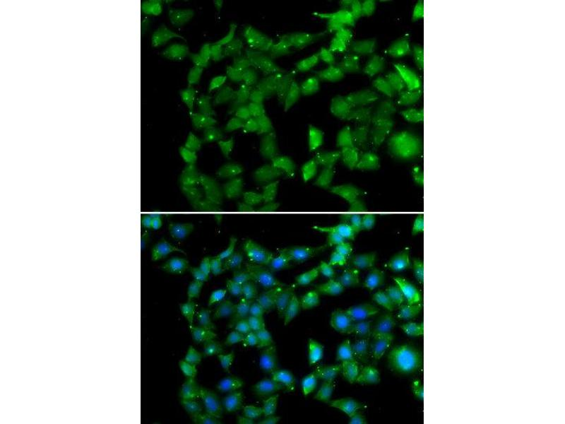 Immunofluorescence (IF) image for anti-Protein Kinase, AMP-Activated, beta 2 Non-Catalytic Subunit (PRKAB2) antibody (ABIN2564708)