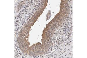 Immunohistochemistry (IHC) image for anti-Formin Homology 2 Domain Containing 3 (FHOD3) antibody (ABIN4311640)