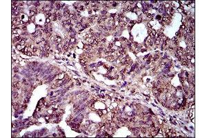 Immunohistochemistry (IHC) image for anti-Interleukin 2 Receptor, alpha (IL2RA) (AA 34-139) antibody (ABIN1845343)