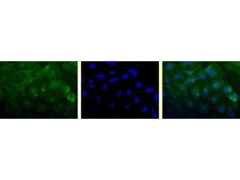Immunofluorescence (IF) image for anti-Survivin antibody (BIRC5) (Cytoplasmic Form) (ABIN153038)