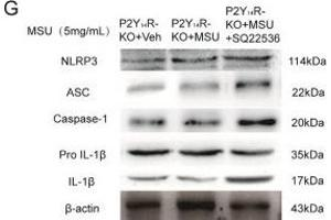Image no. 1 for anti-NLR Family, Pyrin Domain Containing 3 (NLRP3) (AA 15-120) antibody (ABIN1386361)