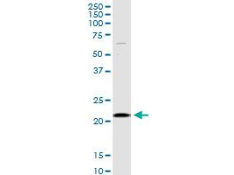 Western Blotting (WB) image for anti-Selenoprotein S (SELS) (AA 1-187), (full length) antibody (ABIN527713)