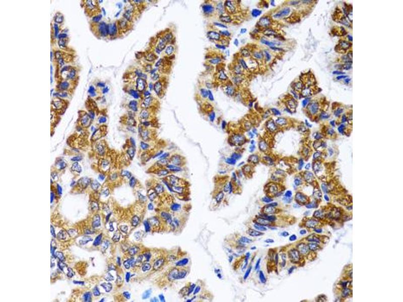 Image no. 4 for anti-Fatty Acid Synthase (FASN) antibody (ABIN6566594)