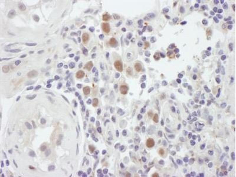 Immunocytochemistry (ICC) image for anti-MutS Homolog 6 (E. Coli) (MSH6) (C-Term) antibody (ABIN151795)
