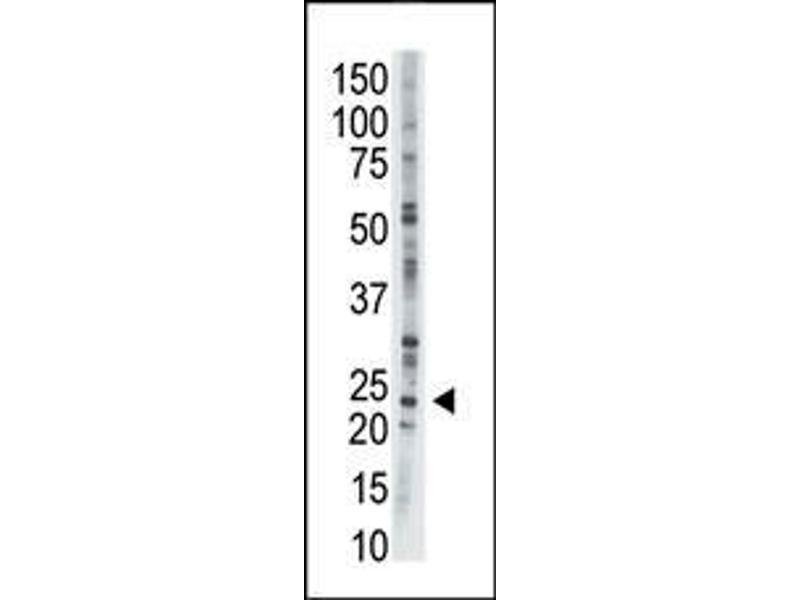 Western Blotting (WB) image for anti-Adenylate Kinase 1 antibody (AK1) (AA 165-194) (ABIN392795)