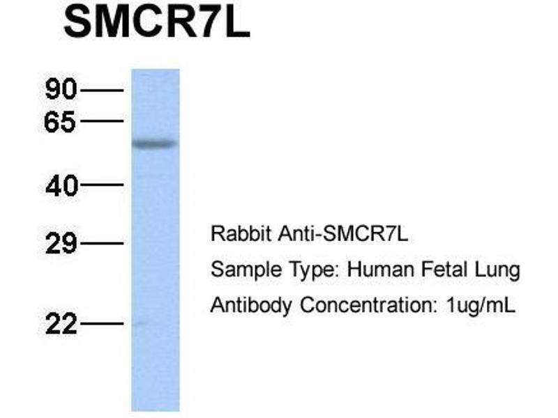 Western Blotting (WB) image for anti-Smith-Magenis Syndrome Chromosome Region, Candidate 7-Like (SMCR7L) (N-Term) antibody (ABIN503036)