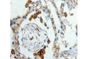 Immunohistochemistry (Paraffin-embedded Sections) (IHC (p)) image for anti-Chemokine (C Motif) Ligand 1 (XCL1) (AA 23-113) antibody (ABIN2938013)