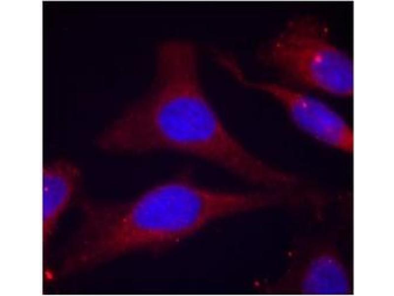 image for anti-PTPN6 antibody (Protein-tyrosine Phosphatase 1C) (pTyr536) (ABIN319255)