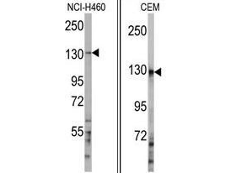 Image no. 1 for anti-Ubiquitination Factor E4A (UBE4A) (C-Term) antibody (ABIN357482)