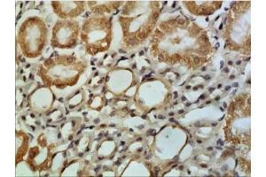 Immunohistochemistry (Paraffin-embedded Sections) (IHC (p)) image for anti-Chemokine (C-X-C Motif) Receptor 3 (CXCR3) antibody (ABIN4265519)