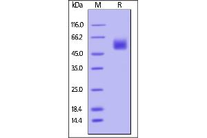 SDS-PAGE (SDS) image for Hemagglutinin (HA) (AA 17-339) (Active) protein (AVI tag,Biotin,His tag) (ABIN4949048)