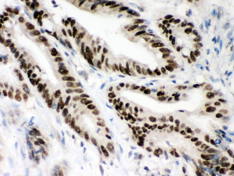 Immunohistochemistry (IHC) image for anti-MSH2 (AA 337-583) antibody (ABIN3043885)