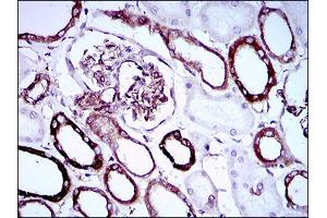 Image no. 7 for anti-Synaptonemal Complex Protein 3 (SYCP3) (AA 27-128) antibody (ABIN1724891)