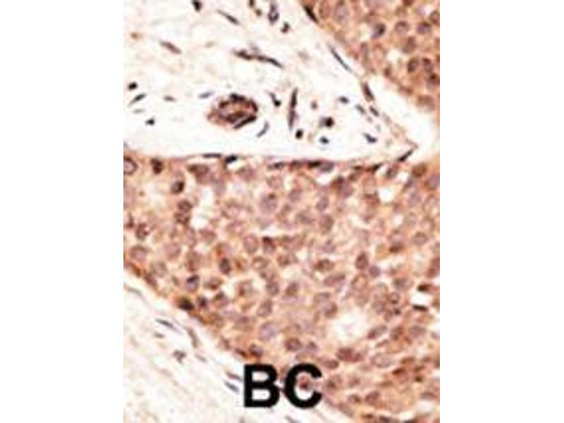 Immunohistochemistry (IHC) image for anti-CDX2 antibody (Caudal Type Homeobox 2) (AA 1-30) (ABIN390076)