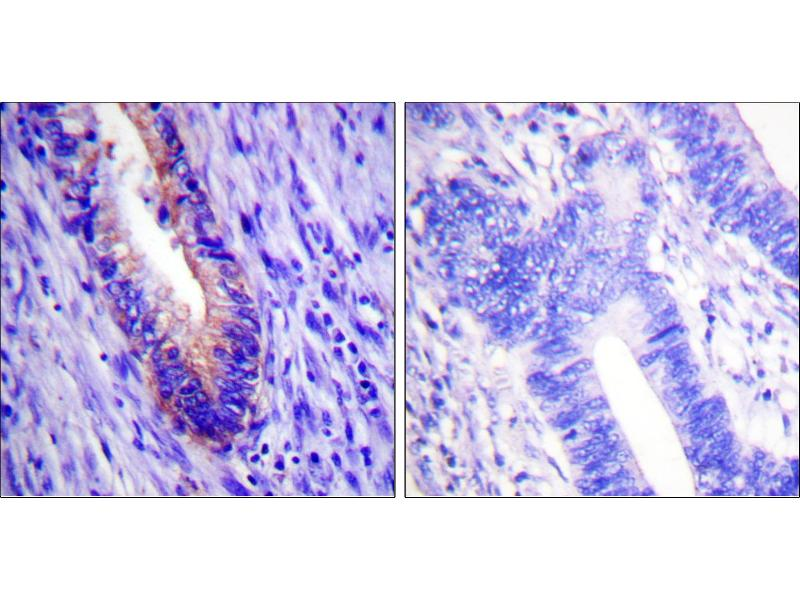 Image no. 1 for anti-Eukaryotic Translation Initiation Factor 4 Gamma, 1 (EIF4G1) (Internal Region) antibody (ABIN1576239)