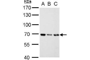 Western Blotting (WB) image for anti-RecQ Protein-Like (DNA Helicase Q1-Like) (RECQL) (N-Term) antibody (ABIN2857056)