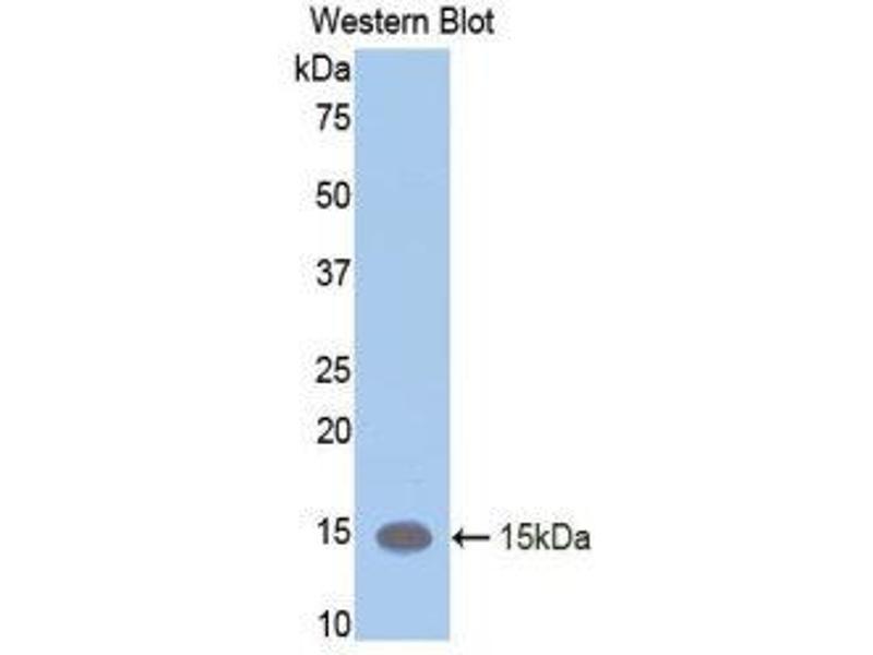 Western Blotting (WB) image for anti-Leukemia Inhibitory Factor Receptor alpha (LIFR) (AA 381-485) antibody (ABIN1859656)