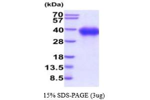 Image no. 1 for Signaling Lymphocytic Activation Molecule Family Member 1 (SLAMF1) (AA 21-237) protein (His tag) (ABIN5854810)