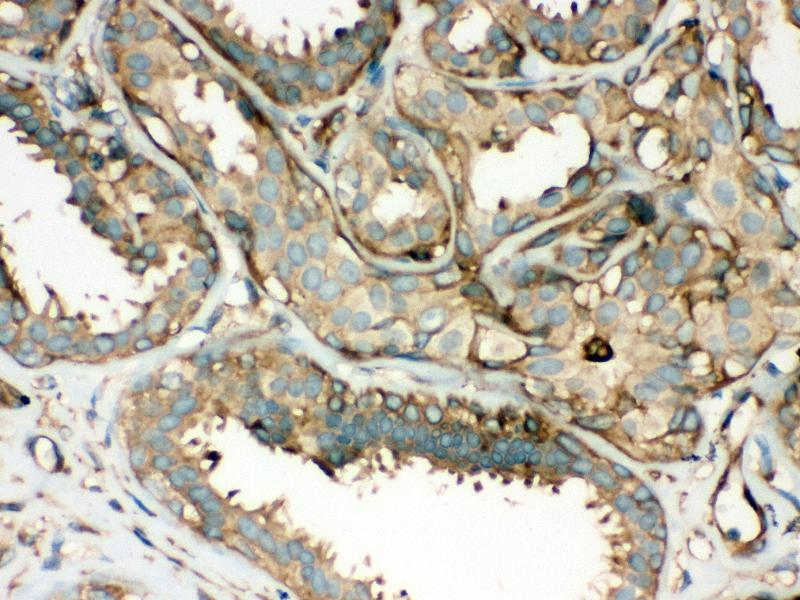 Immunohistochemistry (IHC) image for anti-rho-Associated, Coiled-Coil Containing Protein Kinase 2 (ROCK2) (AA 652-923) antibody (ABIN3043921)