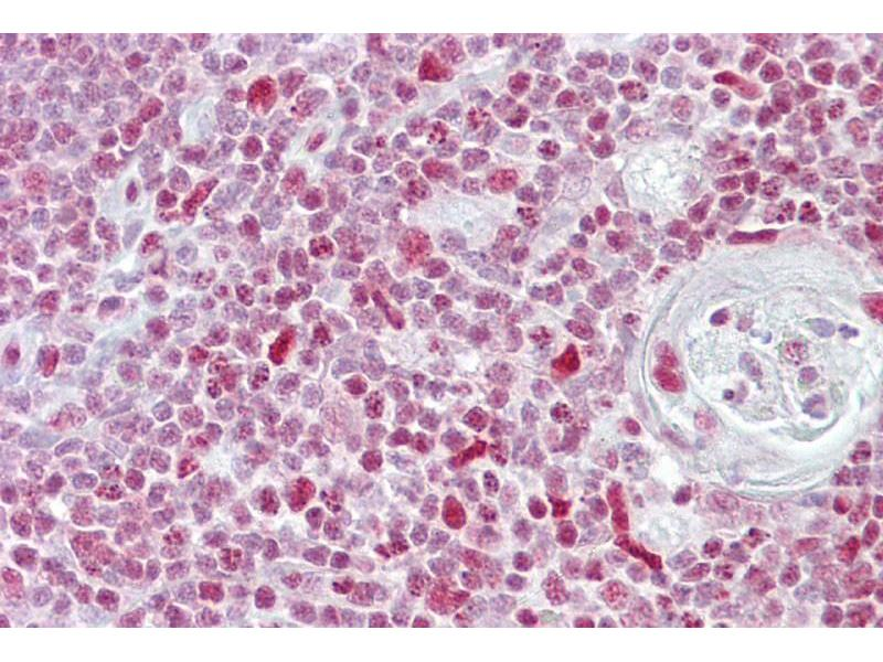 Immunohistochemistry (IHC) image for anti-Nuclear Factor of Activated T-Cells, Cytoplasmic, Calcineurin-Dependent 3 (NFATC3) (N-Term) antibody (ABIN2792685)