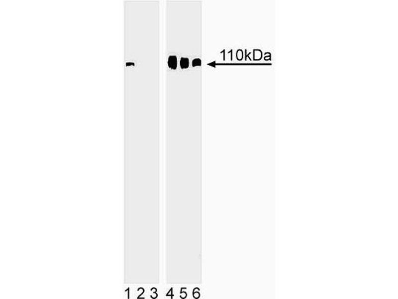 Western Blotting (WB) image for anti-Retinoblastoma 1 antibody (RB1) (pSer780) (ABIN967604)