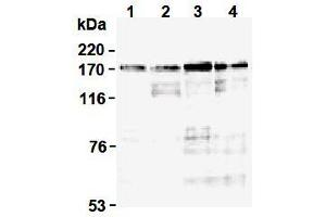 Western Blotting (WB) image for anti-Topoisomerase II alpha antibody (Topoisomerase (DNA) II alpha 170kDa) (N-Term) (ABIN1109282)