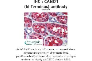 Image no. 1 for anti-Cullin-Associated and Neddylation-Dissociated 1 (CAND1) antibody (ABIN1732591)