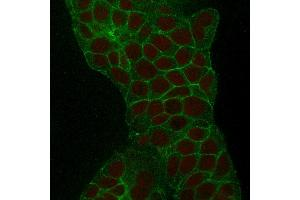 Image no. 3 for anti-Tumor-Associated Calcium Signal Transducer 2 (TACSTD2) (AA 31-274) antibody (ABIN6939972)