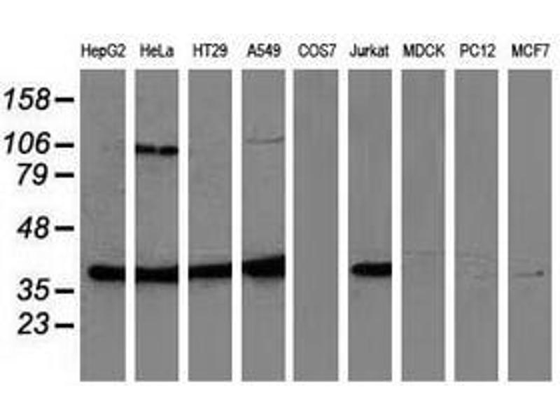 image for anti-MAPK12 antibody (Mitogen-Activated Protein Kinase 12) (ABIN1499302)