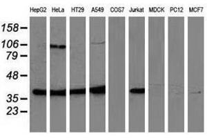 Image no. 2 for anti-Mitogen-Activated Protein Kinase 12 (MAPK12) antibody (ABIN1499302)