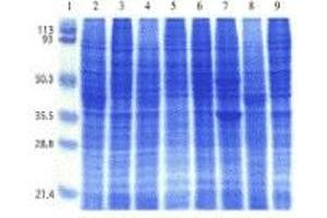 SDS-PAGE (SDS) image for Human Cell Line I Blot (ABIN2455957)