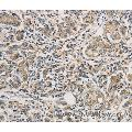 Immunohistochemistry of Human gastric cancer using PTPN11 Polyclonal Antibody at dilution of 1:25