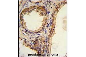 Image no. 2 for anti-CAMP Responsive Element Binding Protein 3-Like 1 (CREB3L1) (AA 481-509), (C-Term) antibody (ABIN5533845)