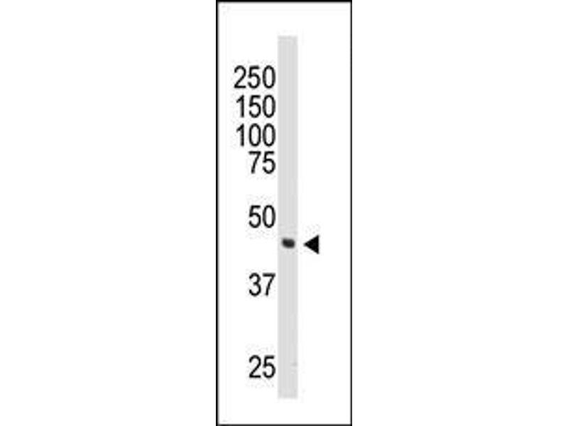 Western Blotting (WB) image for anti-DOK2 (AA 380-412), (C-Term) antibody (ABIN392072)