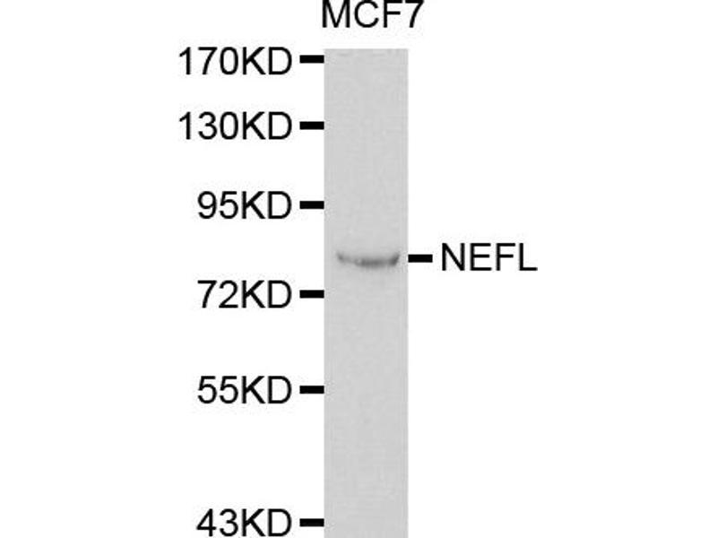 Image no. 1 for anti-Neurofilament antibody (ABIN6566538)