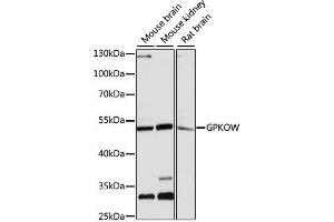 Image no. 4 for anti-G Patch Domain and KOW Motifs (GPKOW) antibody (ABIN6141332)